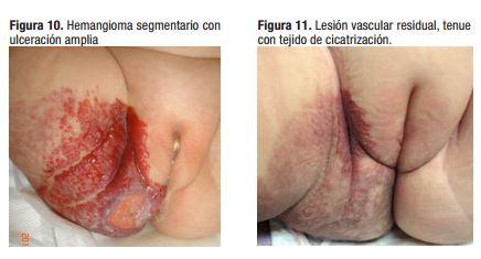 Tratament cu propranolol hemangiom