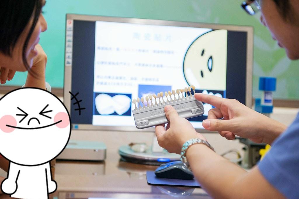 白牙萬事順,一切都要從到人本自然牙醫做牙齒美白陶瓷貼片說起  (3)