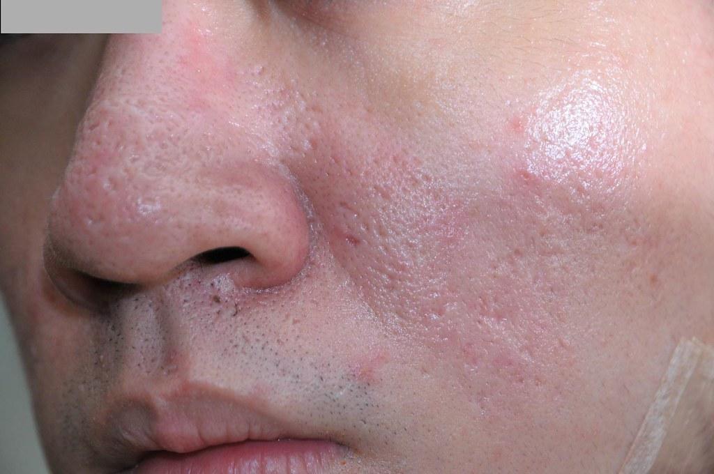 變身型男!台北采醫漾麗診所飛梭雷射救了我的痘疤、凹洞 (5)