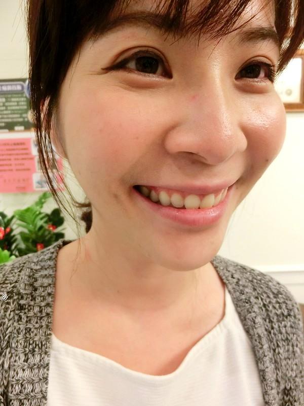 竹北真美牙醫診所-舒眠植牙中心 (43)
