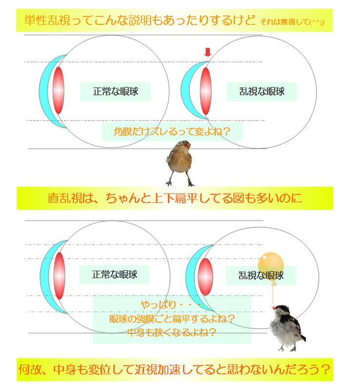 乱視の不思議〜強度乱視になると角膜だけじゃなくて眼球も変形してるよね?という説明の図