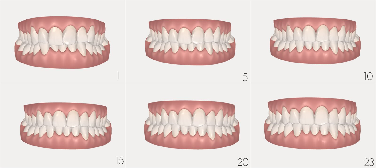 Invisalign Journey