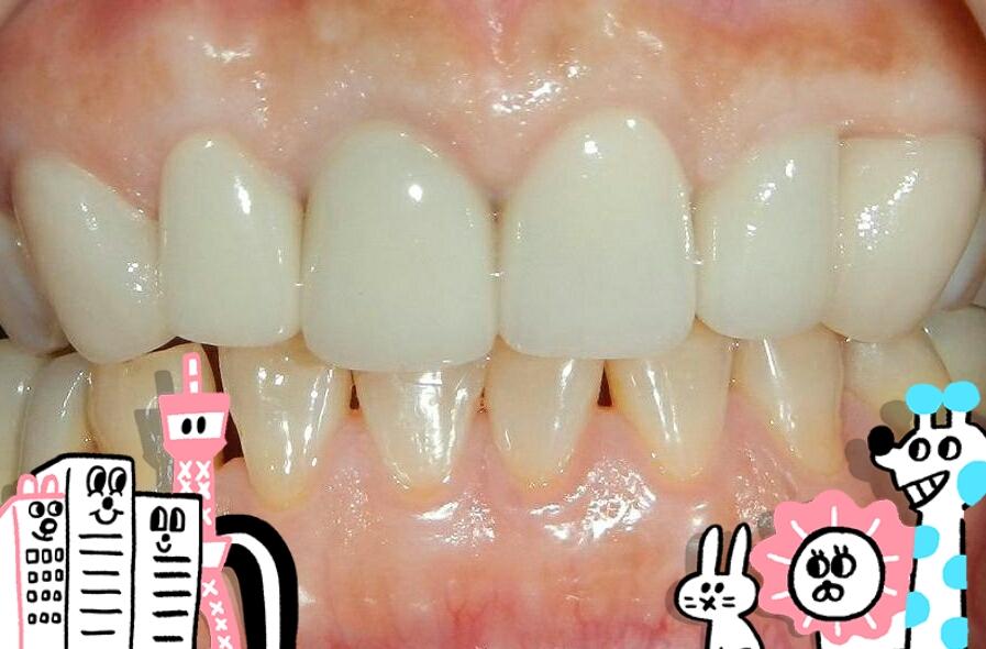 白牙萬事順,一切都要從到人本自然牙醫做牙齒美白陶瓷貼片說起_0308_01 (4)