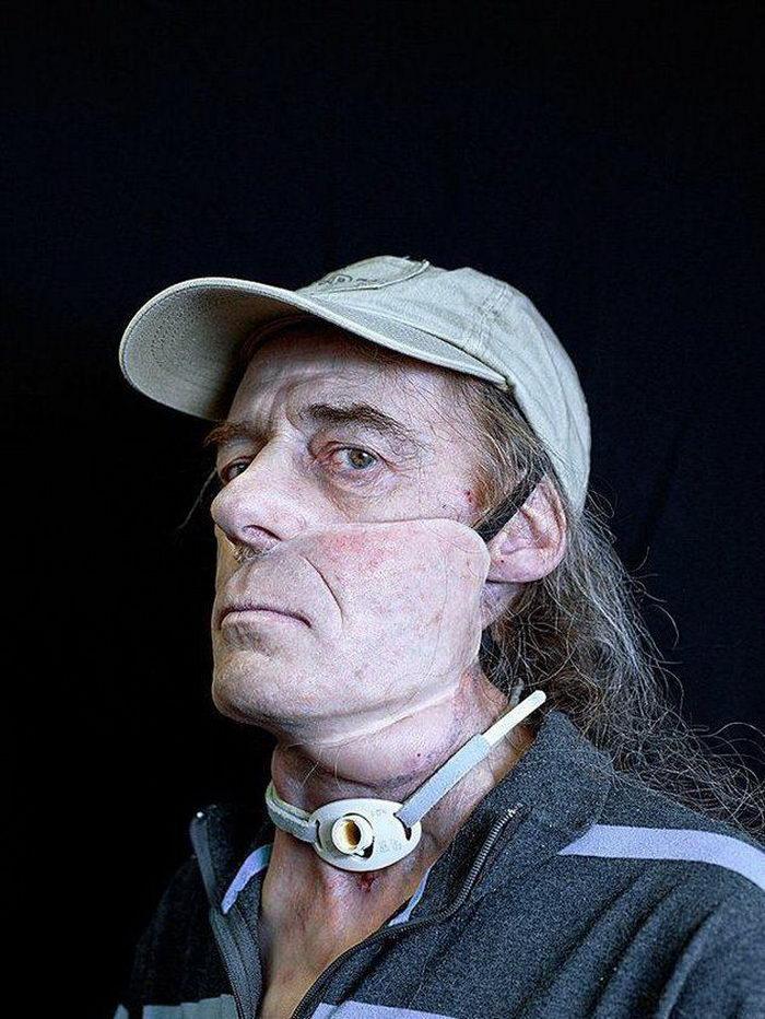 Cyril Crepin 我的模特都是嚴重毀容者12