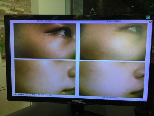 【轉貼】【保養】毛孔粗大好惱人呵護自己好好做點保養  Natural Beauty自然美 NB-1細緻毛孔臉部課程 (35)