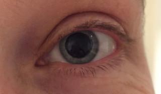 ik-crazy-eyes