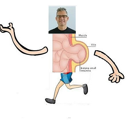 Thanks to my good friend Steven for illustrating my recovery from #hernia #surgery.