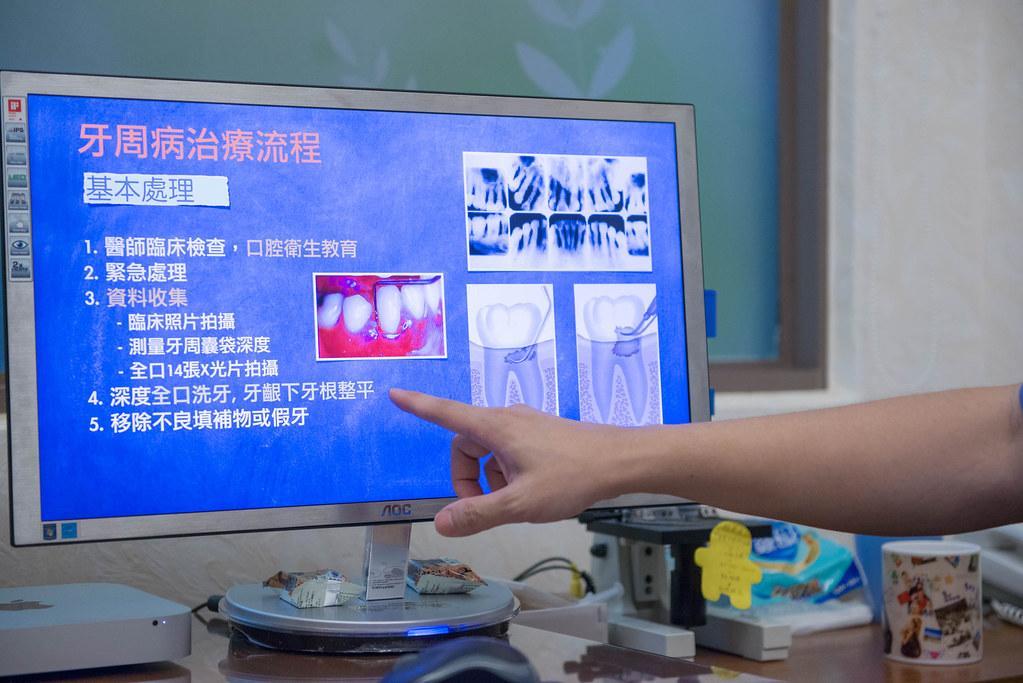 牙周病治療推薦~謝謝高雄人本自然牙醫讓我看到媽媽久違的笑容_0315