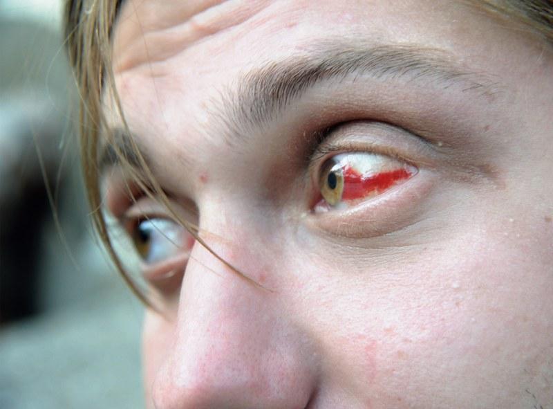 戰鬥民族沈浸在性與毒品中的青春紀實:嗨皮就好31