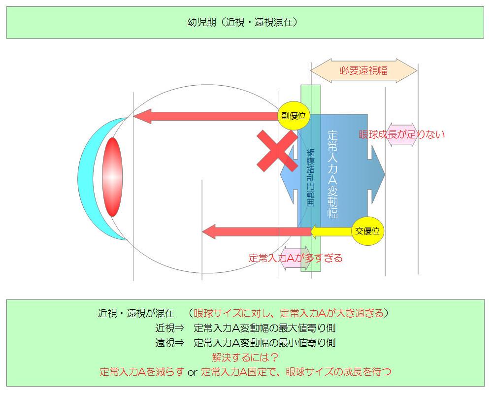 視力回復のために知りたい眼のメカニズム|独自まとめその10用03|幼児期(近視・遠視混在)|真・視力回復法|視力回復コア・ポータル