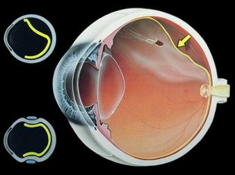 Bong võng mạc có thể dẫn đến mù lòa