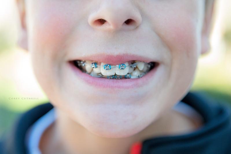 Jackson's braces day 1
