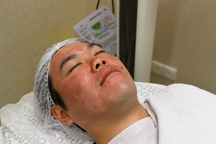 Premier Clinic TTDI Fractional Laser Treatment for Acne Scar