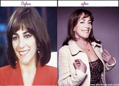 Look At After Before Plastic Surgery Pictures Of Carmen Maura Was She Much Better Right Before?