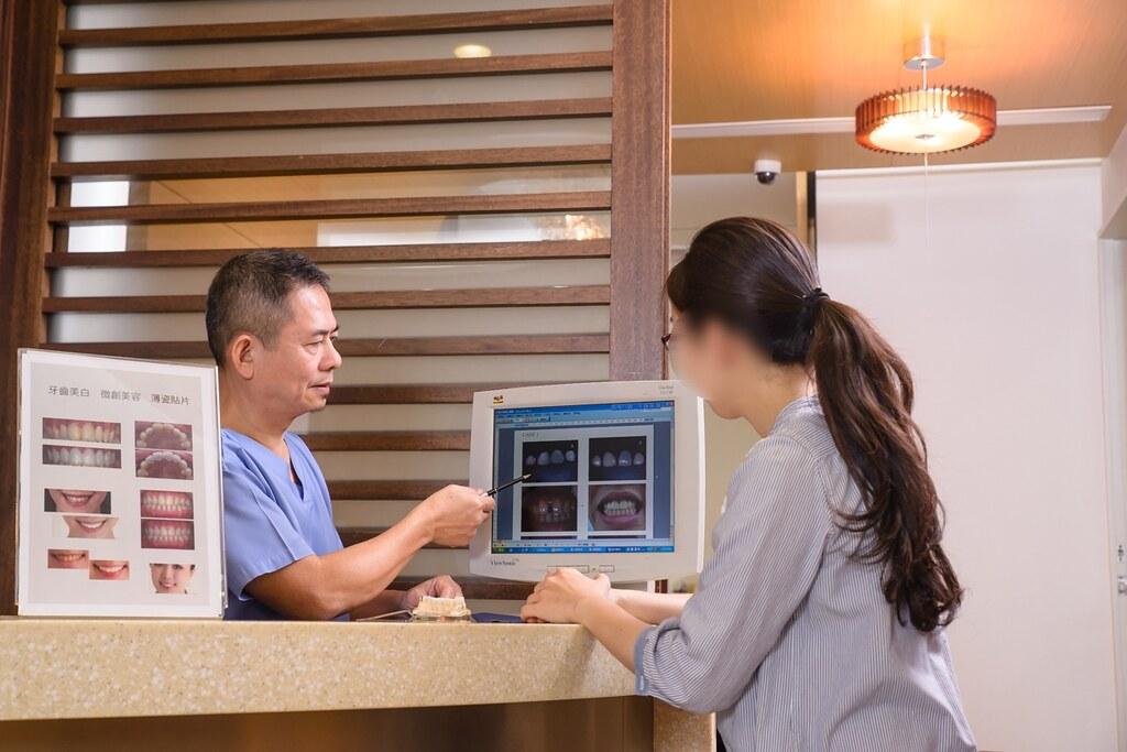 陶瓷貼片打造我的白皙牙齒,就交給台南佳美牙醫塗祥慶醫師吧~ (11)