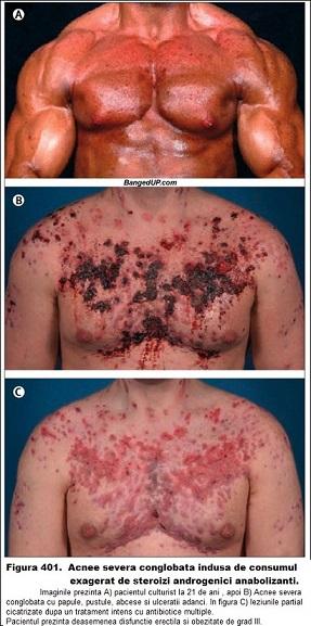 Cat de rau poate fi - acnee steroizi anabolizanti