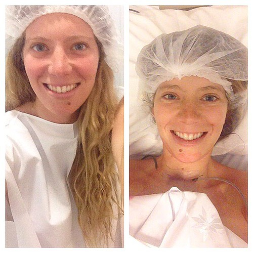Antes y después de la cirugía, linda como siempre!
