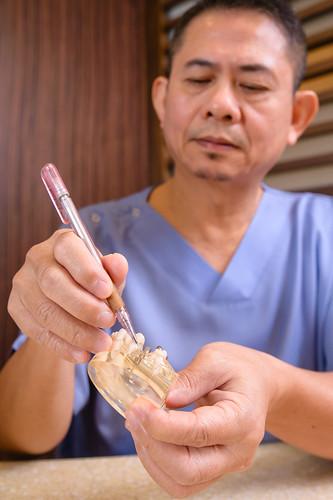 台南植牙推薦‧台南人都愛去的佳美牙醫植牙心得分享 (1)