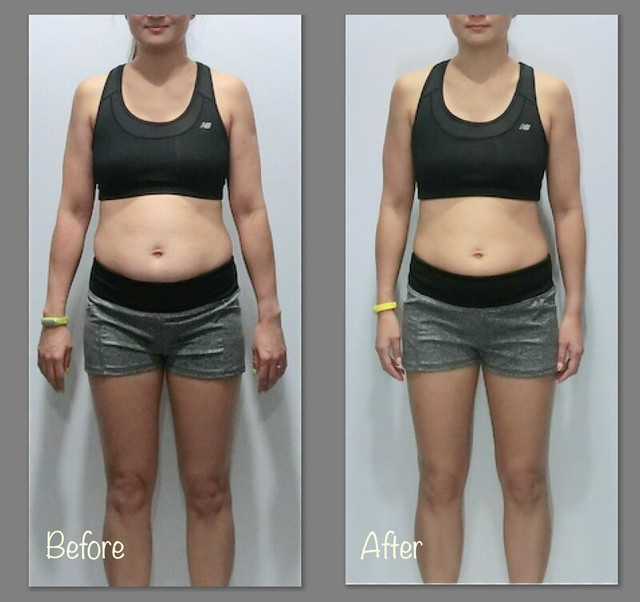 Front View - Before and after weight-loss comparison.