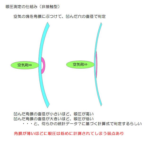 非接触な眼圧計の測定の仕組み(メカニズム)と角膜厚による誤差があるという弱点〜角膜厚での補正計算さぼってるのも初期段階の緑内障見落としの要因のひとつなんじゃない?