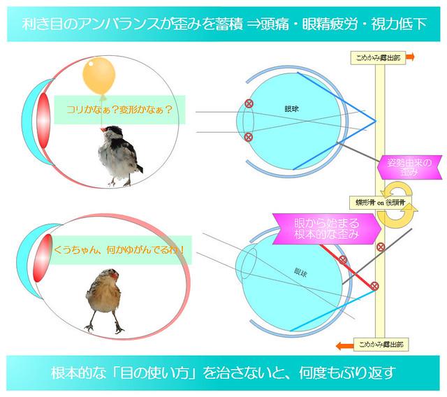 簡単図解シリーズ04|目の使い方の悪さ・利き目のアンバランスが歪みを蓄積⇒頭痛・眼精疲労・視力低下|真・視力回復法|視力回復コア・ポータル