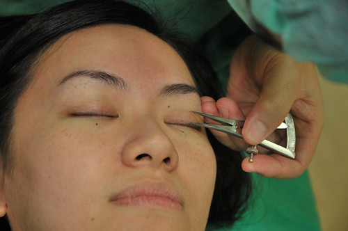 台北雙眼皮手術推薦│台北采醫漾麗診所分享訂書針雙眼皮手術 (3)