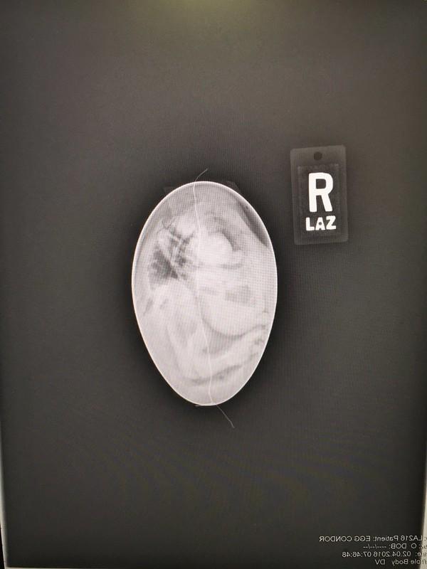 X-ray view of inside California condor egg 216
