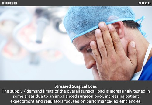 Stressed Surgical Load