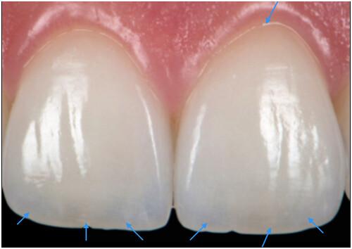 陶瓷貼片都很假嗎?權泓牙醫黃泓傑醫師巴西SKYN取經紀實 (21)