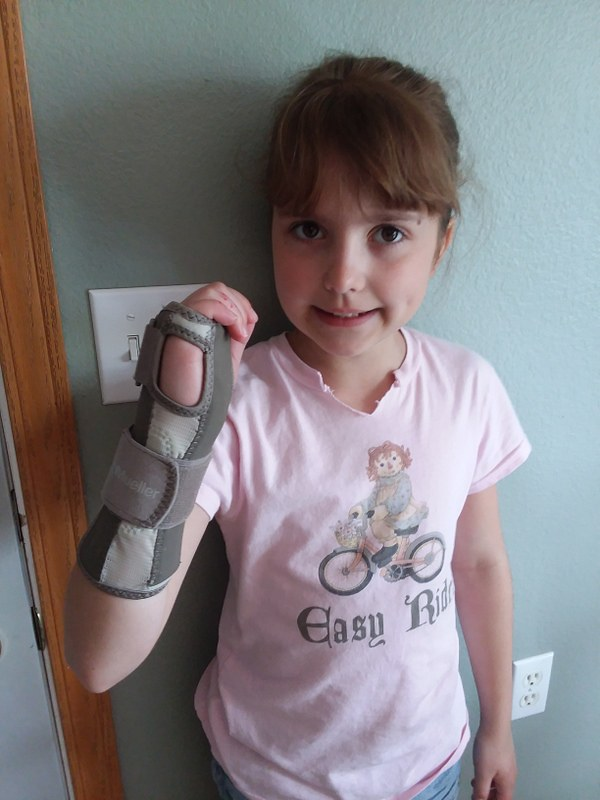 Broken Wrist (1)