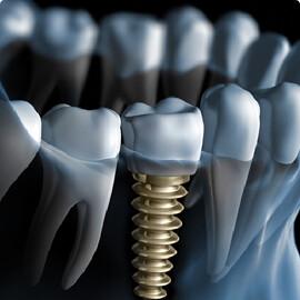 Best Dental Implants in Jaipur