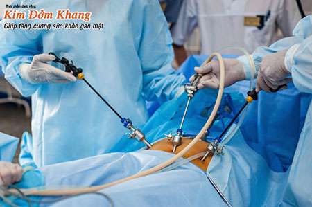 Điều trị sỏi túi mật không nhất thiết phải cắt túi mật khi sỏi chưa gây biến chứng