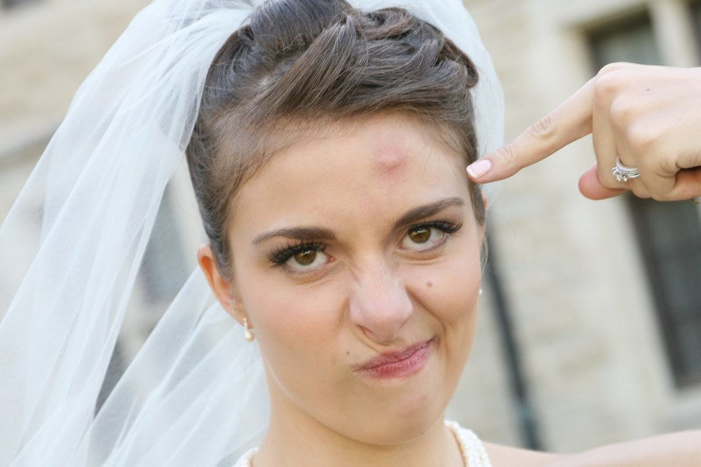 Bride with Mosquito bite on face