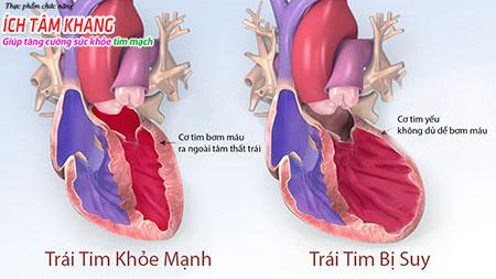 Suy tim là bệnh mạn tính, khó có thể chữa khỏi hoàn toàn và là hậu quả chung của tất cả các bệnh tim mạch.