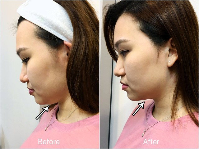 La Clinic: Before-After Photo of Necklift