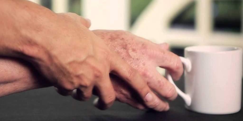 Le Parkinson : Une application pour détecter précocement cette maladie
