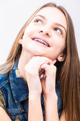 Portrait of Smiling Caucasian Female Teenager With Teeth Braces. Posing With Lifter Head Looking Upwards.