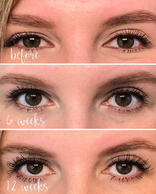 lash boost weeks before - 12 weeks