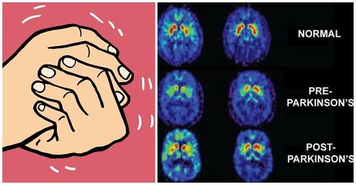 Makanan dan Buah Buahan Yang Dianjurkan Untuk Penyakit Parkinson