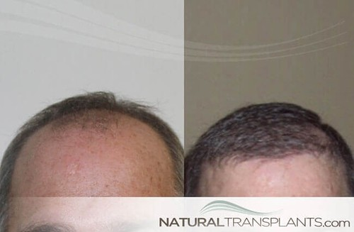 Gain Confidence With A Hair Replacement Procedure Hair Transplant
