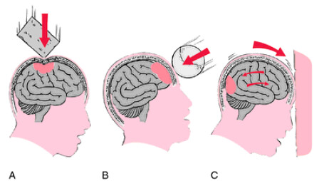 Perawatan Cedera Otak Traumatik
