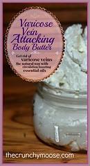 Varicose Vein Attack