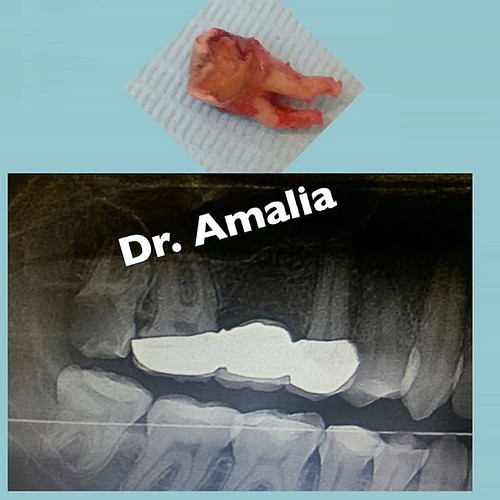 خلع ضرس العقل وبدون جراحة Remove the wisdom tooth without surgery #Face #pain #drill #december #instagram #igers #instaphoto #instagrammers #instapic #ортодонтія #ортодонтия #ortodoncja #ortodoncie #ortodontiaestetica #пластинки #стоматологія #стоматологи