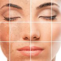 Krim Obat Penghilang Hiperpigmentasi di Kulit Wajah di Apotik