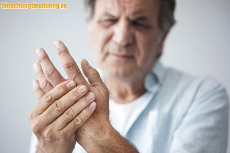 70% người mắc tiểu đường có triệu chứng tê bì chân tay