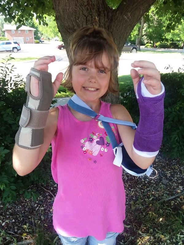 Broken Wrist (5)