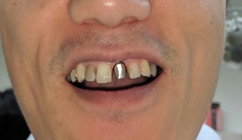 前歯の差し歯のための支柱