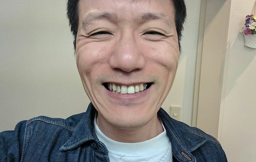 新しい前歯の差し歯を交換しました