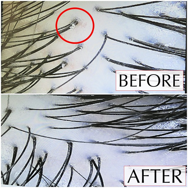 Before After Hair Treatment at Beijing 101
