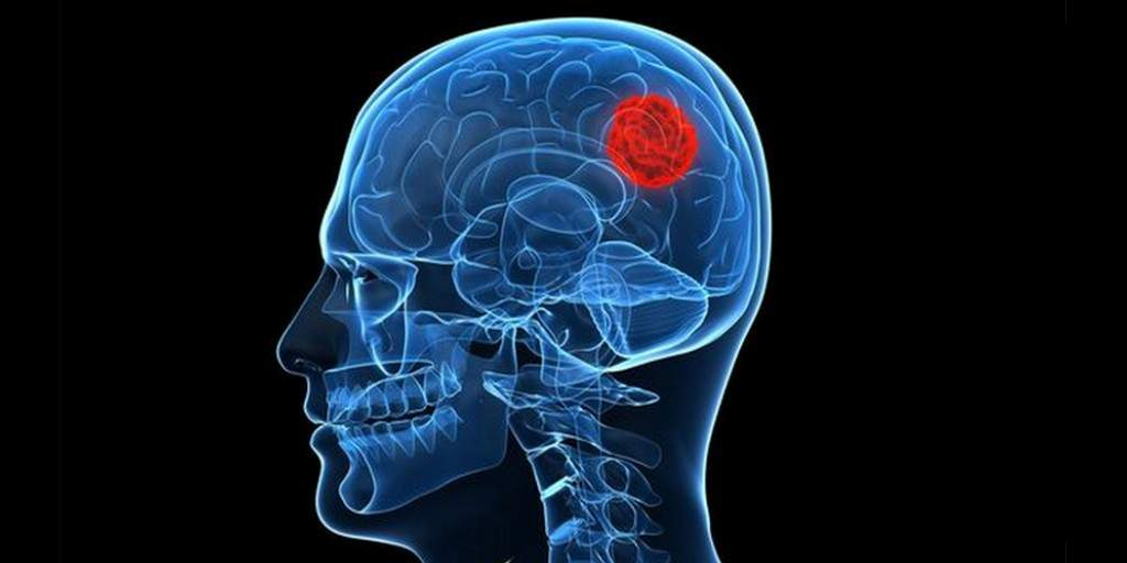 Une nouvelle technique pour traiter le cancer du cerveau
